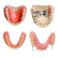 Răng giả tháo lắp nha khoa Thủ Đức