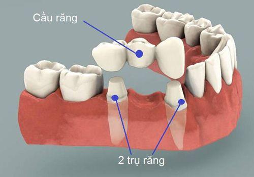 Cầu răng sứ tại nha khoa Thủ Đức