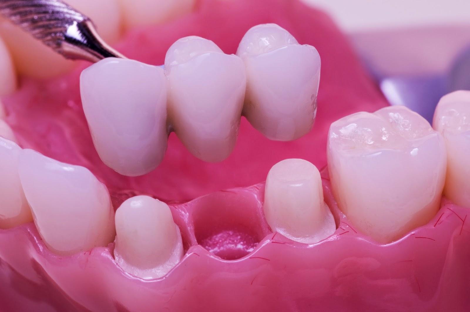 Cầu răng sứ tại nha khoa uy tín thủ đức