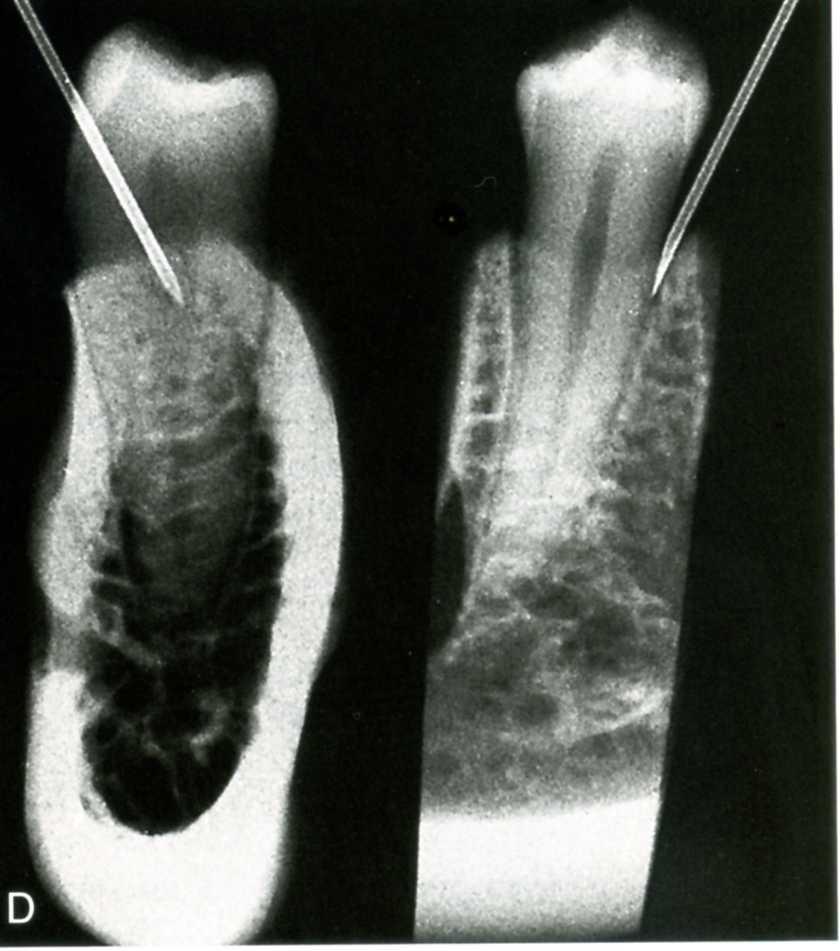 Điều trị tủy răng nha khoa uy tín quận 9