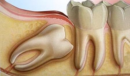 nhổ răng khôn nha khoa thủ đức