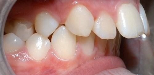 niềng răng hô tại thủ đức tphcm