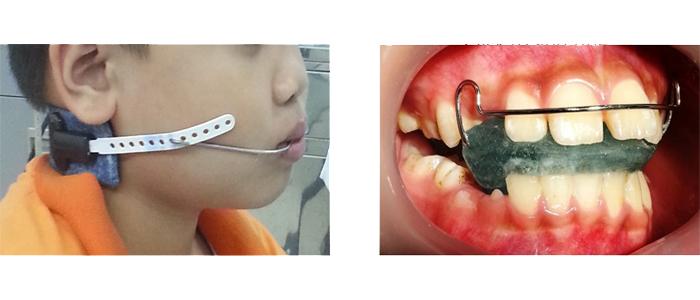 điều trị răng hô ở trẻ em nha khoa khoa Thủ Đức