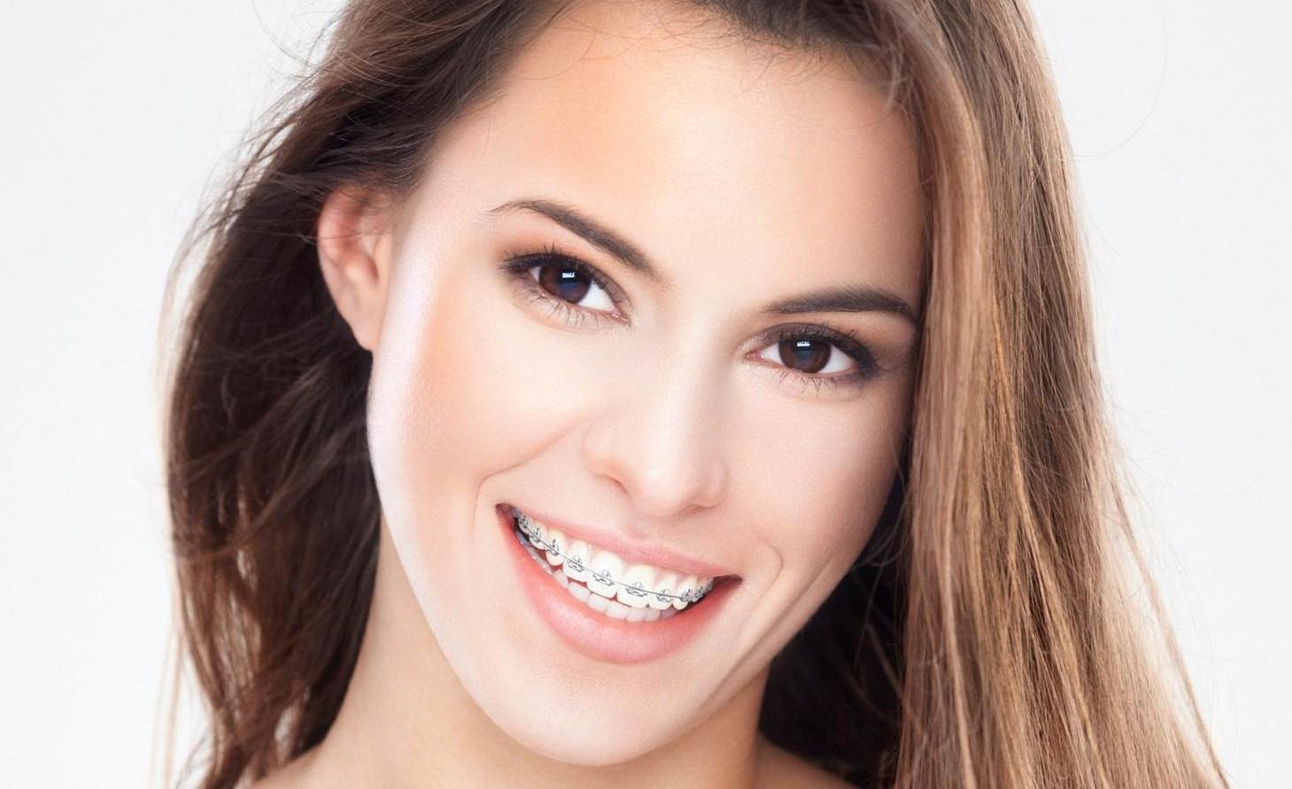 niềng răng hô uy tín tại thủ đức tphcm