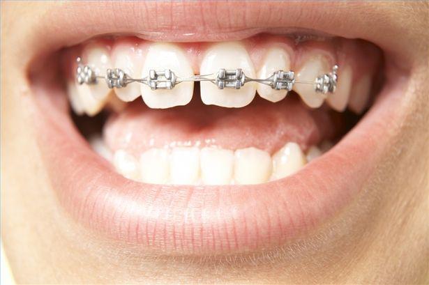 niềng răng thưa kẽ tốt nhất tại Thủ Đức TP.HCM