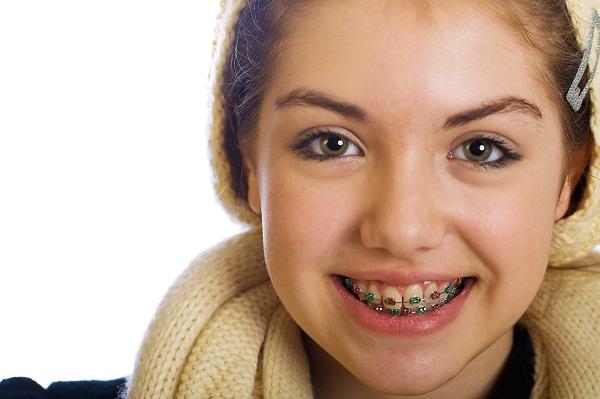 Khi nào nên bắt đầu niềng răng cho trẻ em