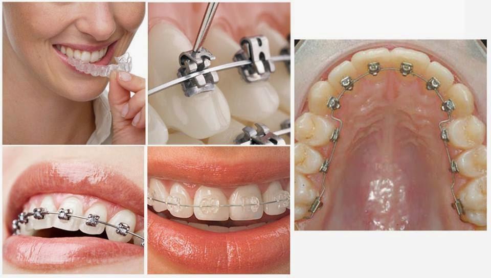 Niềng răng uy tín quận 9