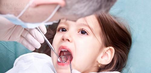 phương pháp niềng răng trẻ em phù hợp nhất
