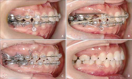 quy trình niềng răng hô tại nha khoa Dr Vương
