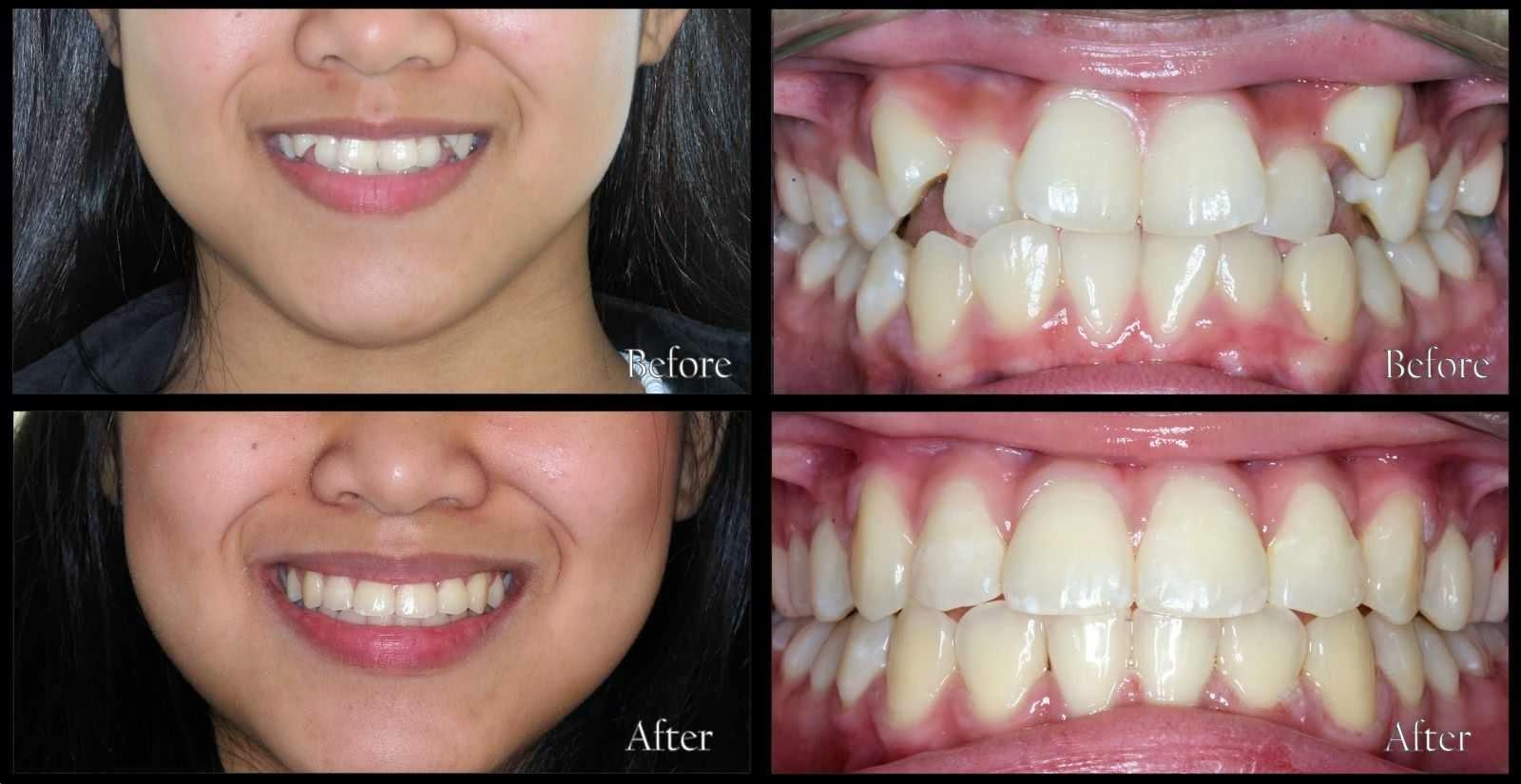 Quy trình niềng răng khểnh ở nha khoa quận 9