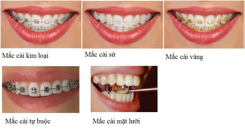 Quy trình niềng răng khểnh tại nha khoa thủ đức
