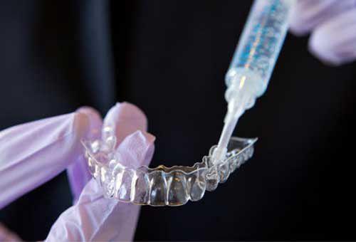 quy trình tẩy trắng răng tại nhà