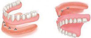 Răng giả tháo lắp nha khoa uy tín
