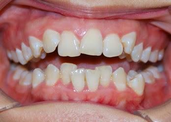 Răng lệch lạc là gì