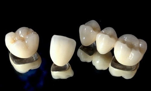 bọc răng sứ kim loại Mỹ tại Thủ Đức Tp.HCM