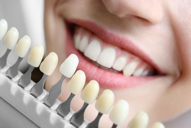 Bọc răng sứ thẩm mỹ tốt nhất thủ đức quận 9