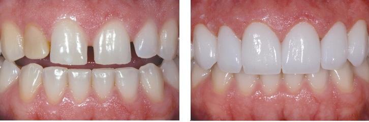 ưu điểm của bọc răng toàn sứ thẩm mỹ tại nha khoa Dr Vương