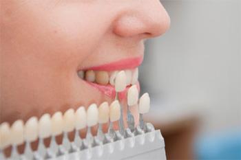 Bọc răng sứ thẩm mỹ uy tín tại Thủ Đức