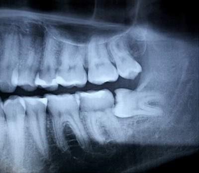 tại sao phải nhổ răng khôn