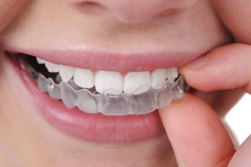 quy trình tẩy trắng răng trắng sáng bằng Opalesence
