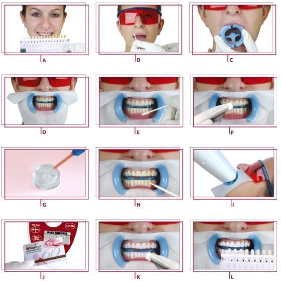 Các bước tẩy trắng răng POLA OFFICE tại nha khoa Dr Vương