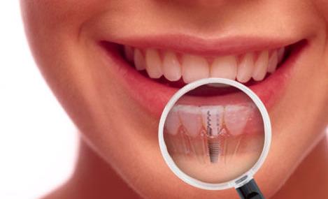 trồng răng implant chỉ 1 lần hẹn