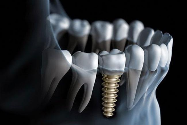 Trồng răng implant của hãng nào là tốt nhất