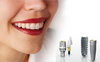 trồng răng implant ở đâu thì tốt