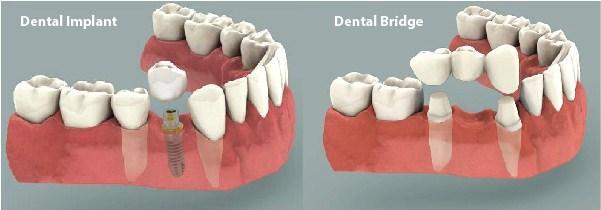 Trồng răng implant uy tín Thủ Đức