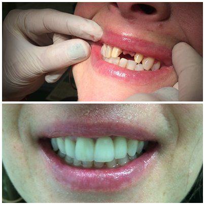 ưu điểm của cầu răng sứ nha khoa uy tín thủ đức