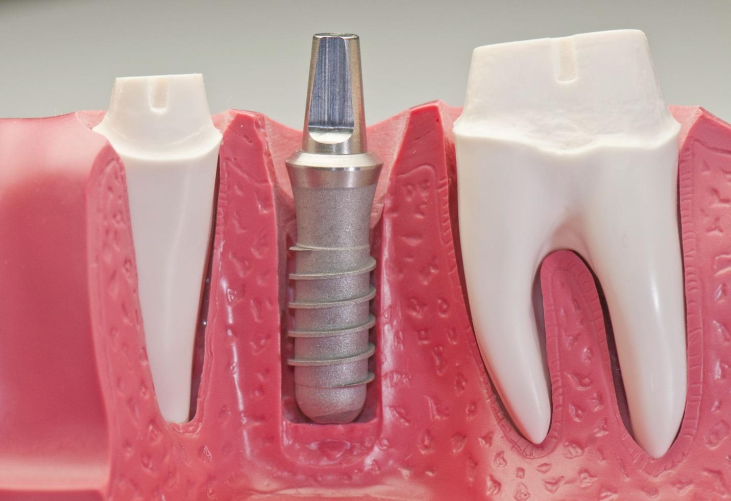 Ưu điểm của cấy ghép răng Implant