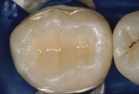 Vật liệu trám răng thẩm mỹ